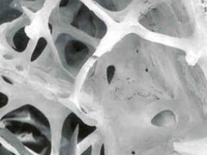 osteoporose_3